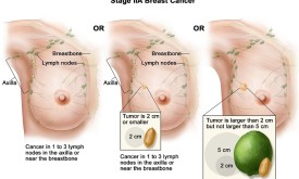 Breast Cancer Stage 2A