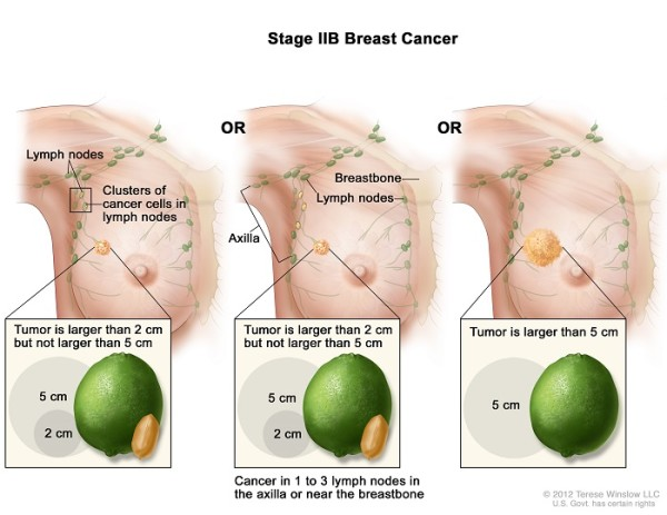 Breast Cancer Stage 2B
